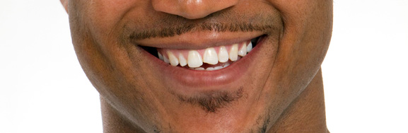 chipped tooth san diego patient
