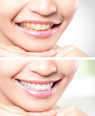 Zoom Teeth Whitening Dentist San Diego Ca Paige Woods Dds