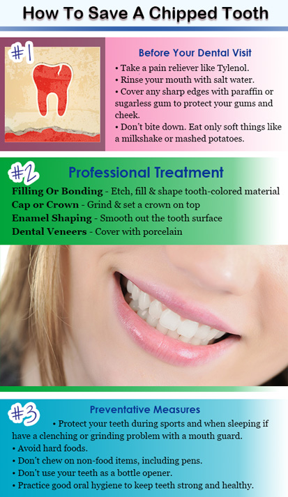 Chipped cracked shattered teeth dentist san diego ca restoring a chipped tooth solutioingenieria Image collections