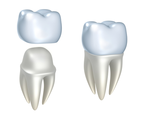 Whats Involved In Having a Dental Crown?