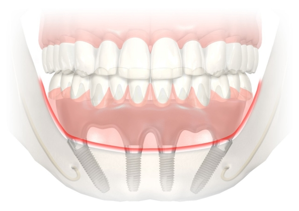 A Complete Arch Supported By Dental Implants