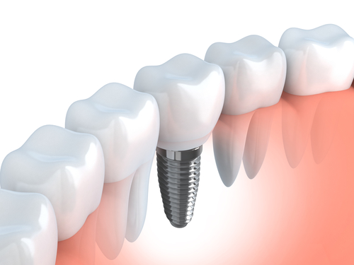 The Covenience Of Same Day Dental Implants